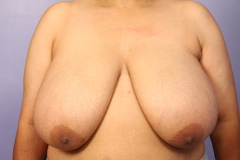 Breast Reduction before 309341