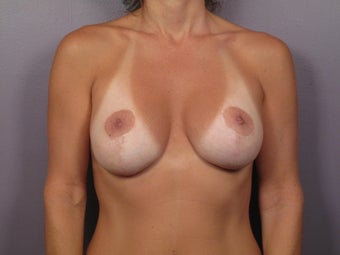 Breast Implant Revision before 306990