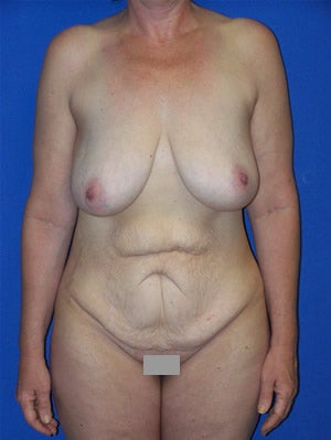 Abdominoplasty with breast lift surgery before 121141
