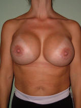 Breast Implant Revision after 123402