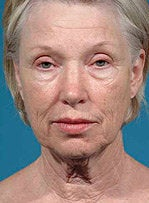 Facelift, eyelid surgery, neck & brow lift before 458802