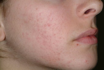 Acne and Isolaz after 95914