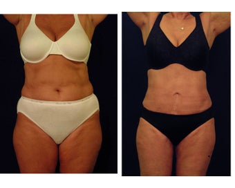 Liposuction before 397050