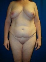 Breast Reduction, Mommy Makeover, Tummy Tuck (Abdominoplasty) before 412073