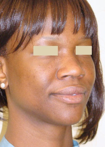 African American Rhinoplasty before 104226