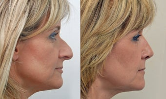 Open Rhinoplasty after 471328