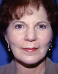Facelift and Eyelid Surgery after 316338