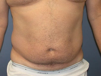 Liposuction before 581438