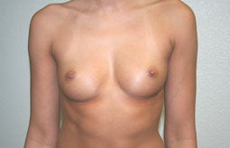 Breast Augmentation before 233360