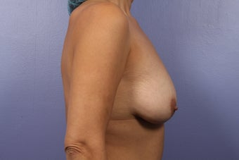 Breast Augmentation- Mommy Makeover before 466153