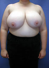 Breast Reduction before 96853