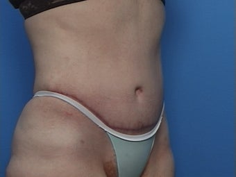 Abdominoplasty after 134584