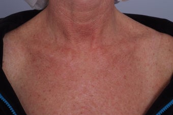 Laser treatment to Chest before 253107