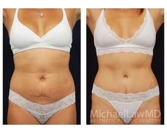 Abdominoplasty - Tummy Tuck before 396139