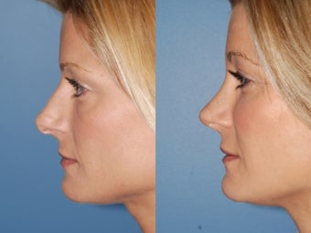 Revision rhinoplasty after 334284