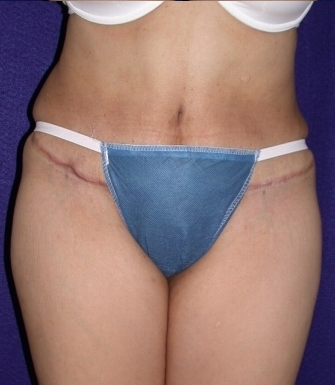abdominoplasty after 208462
