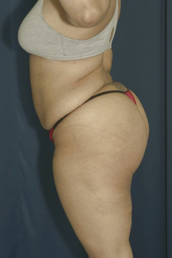 Brazilian Butt Lift surgery (liposuction to multiple areas and fat grafting to buttock) 606611