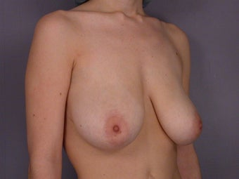 Breast Lift / Breast Augmentation before 290952