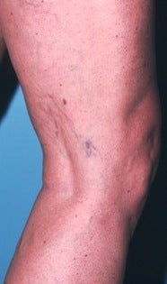 Sclerotherapy before 370426