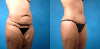 Tummy Tuck before 134087