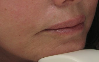 Fraxel Re:pair (repair) CO2 Laser Resurfacing Treatment around the mouth after 56150