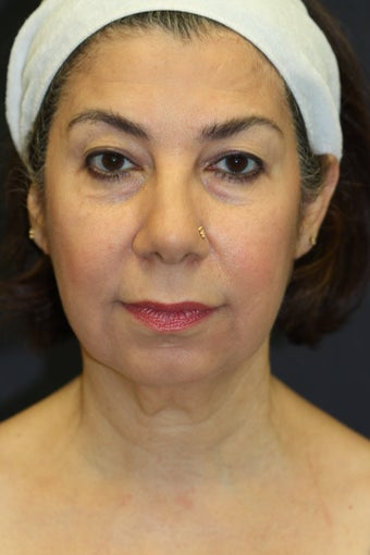 Chin Augmentation with upper/lower blepharoplasty, facelift, radiesse, and buccal fat removal before 527535