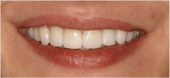 8 Veneers to a more confident smile after 113952