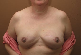 Bilateral reconstruction of the breast with expanders/implants after 557774