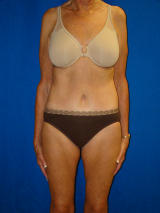 Extended Tummy Tuck (abdominoplasty) after 128661