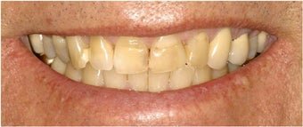 Porcelain Veneers before 112067