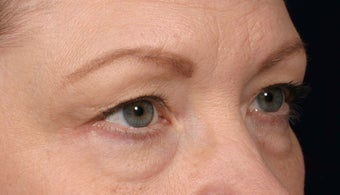 Eyelid surgery before 140085