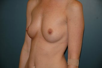 Breast Augmentation before 240913