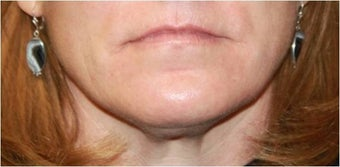 Lip augmentation - juvederm before 435618