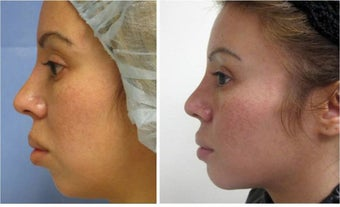 Chin Augmentation before 512847