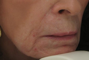 Fraxel repair for Lip, Marionette, and Nasolabial Lines before 63180