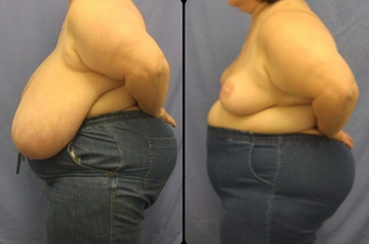 Breast Reduction  after 160540