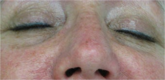 Juvederm for lower eyelid hollows before 77466