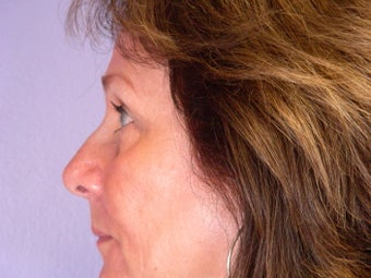 Eyelid Surgery after 306444