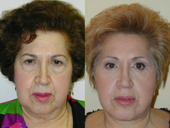Composite Facelift, Upper and Lower Blepharoplasty before 142436
