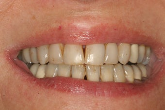 Porcelain Veneers before 213080