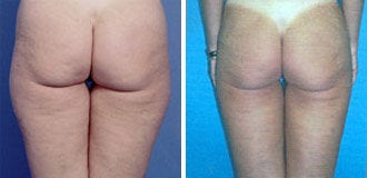 Liposuction before 269432