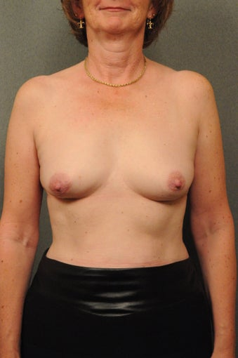 Breast Augmentation with Silicone Implants & Mastopexy before 604290