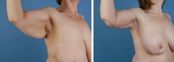 Arm lift (Brachioplasty) after 303698