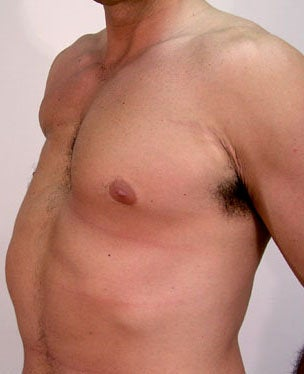 Male Chest Enhancement before 525473