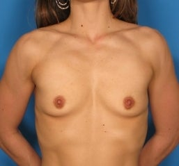 Breast augmentation,  before 463744