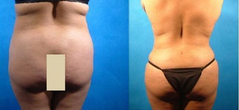Liposuction and Tummy Tuck before 134078