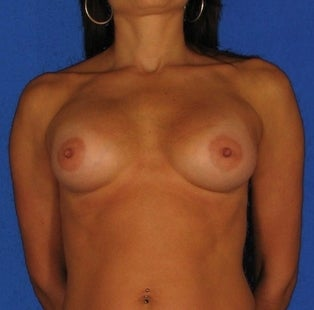 Breast Augmentation after 304411