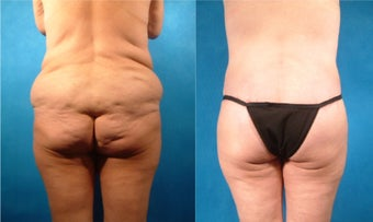 Lower Body Lift with Fat Transfer and Liposuction before 134085