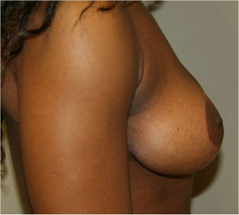 Mastopexy (Breast Lift) after 110540