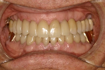 Closing black triangles between teeth after 115537